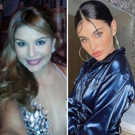 modelos venezolanas antes y después