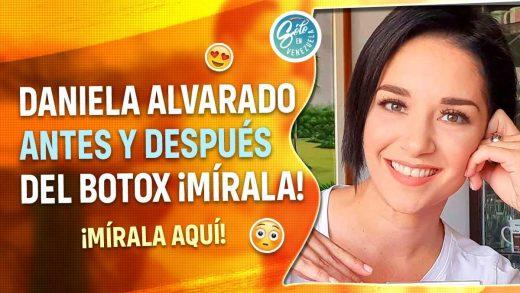 Daniela Alvarado se inyecta botox