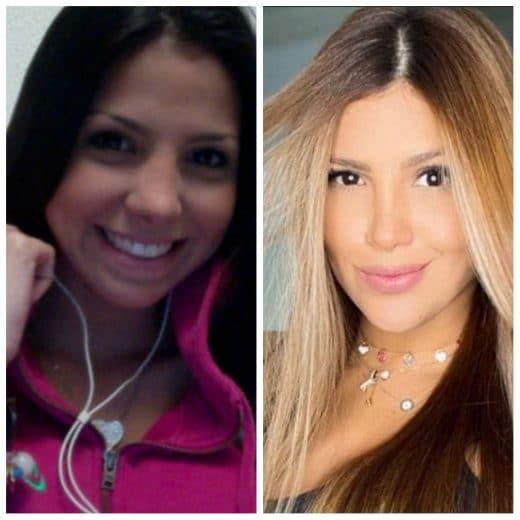 Karlis Romero antes y después