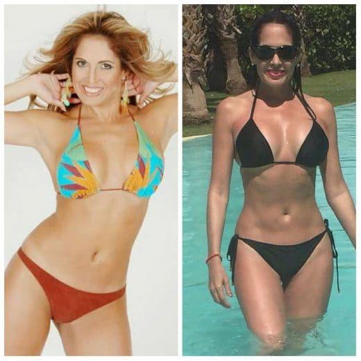 famosas venezolanas con cirugías